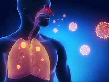 problemas de pulmones